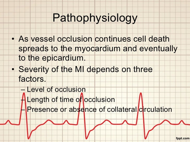 pathophysiology of myocardial infarction Myocardial infarction is defined as sudden ischemic death of myocardial tissue in the clinical context, myocardial infarction is usually due to thrombotic occlusion.