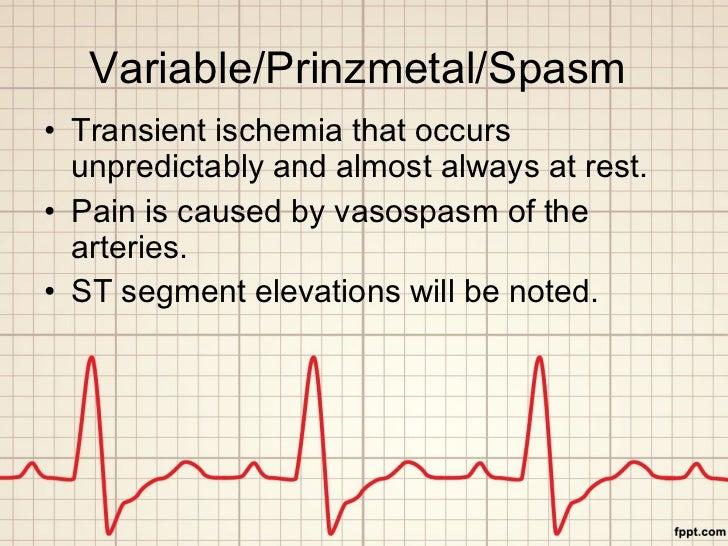 Variable/Prinzmetal/Spasm  <ul><li>Transient ischemia that occurs unpredictably and almost always at rest. </li></ul><ul><...