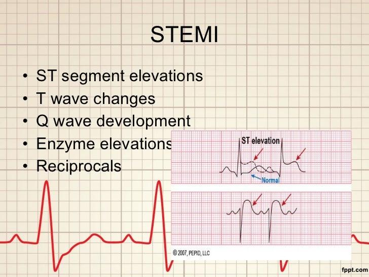 STEMI <ul><li>ST segment elevations </li></ul><ul><li>T wave changes </li></ul><ul><li>Q wave development </li></ul><ul><l...