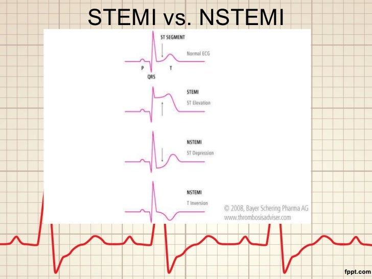 STEMI vs. NSTEMI