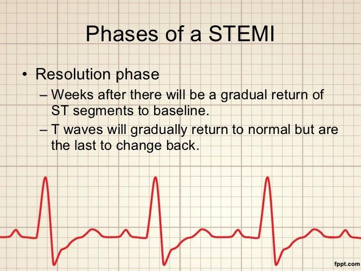 Phases of a STEMI <ul><li>Resolution phase </li></ul><ul><ul><li>Weeks after there will be a gradual return of ST segments...