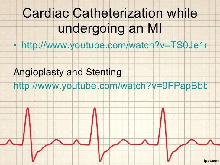 Cardiac Catheterization while undergoing an MI <ul><li>http://www.youtube.com/watch?v=TS0Je1m9Q8A&feature=related </li></u...