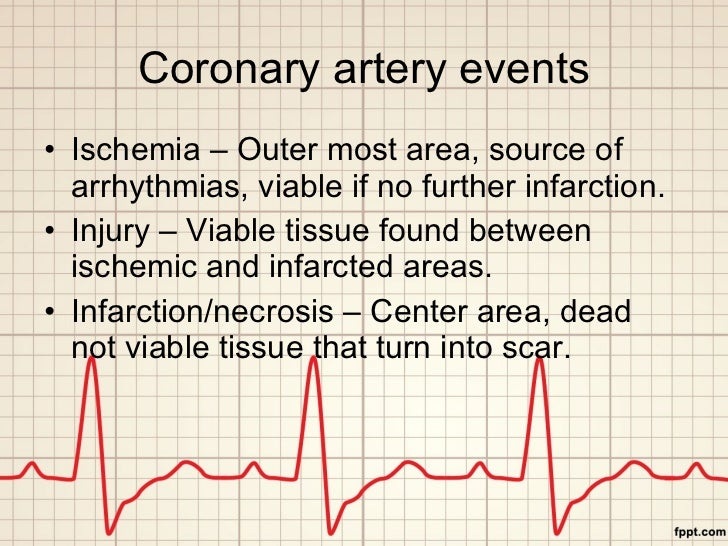 Coronary artery events <ul><li>Ischemia – Outer most area, source of arrhythmias, viable if no further infarction. </li></...