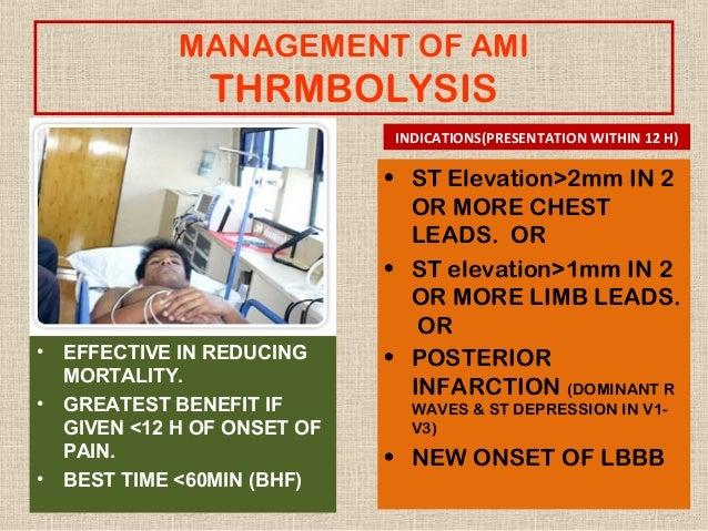 Bimectin for humans