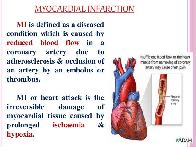 #Myocardial infarction (MI) « maismaismedicina