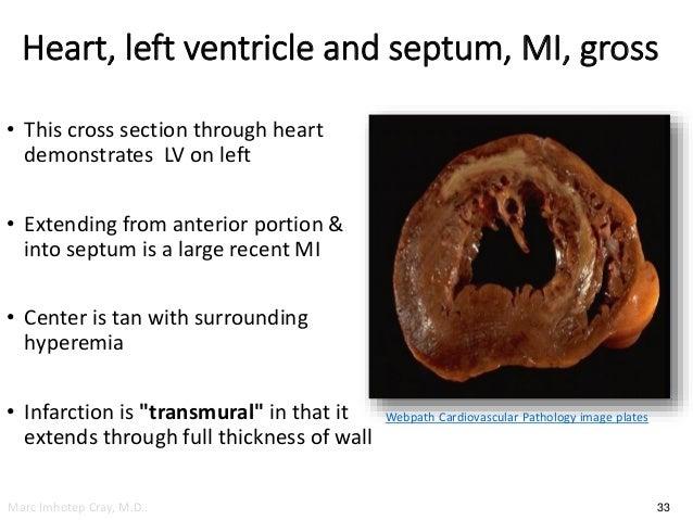 diagnosing and treating acute myocardial infarction Drug treatment after myocardial infarction  percutaneous coronary intervention for treating acute  for more information on diagnosing and managing acute.
