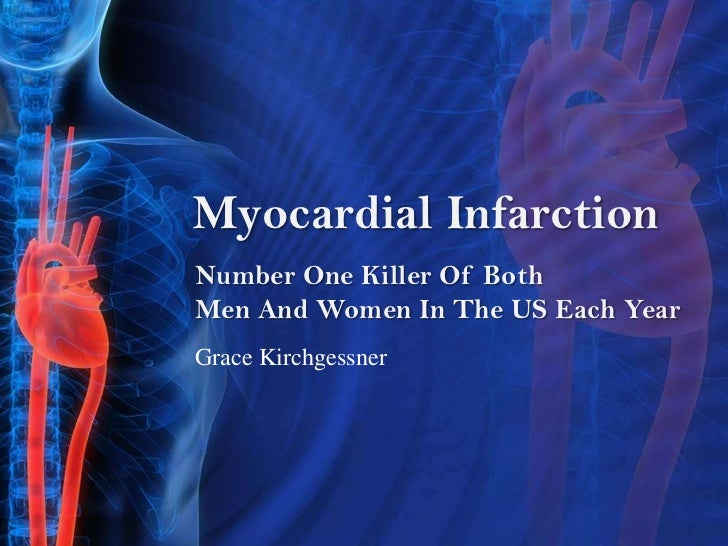 Number One Killer Of Both Men And Women In The US Each Year<br />Myocardial Infarction <br />Grace Kirchgessner<br />