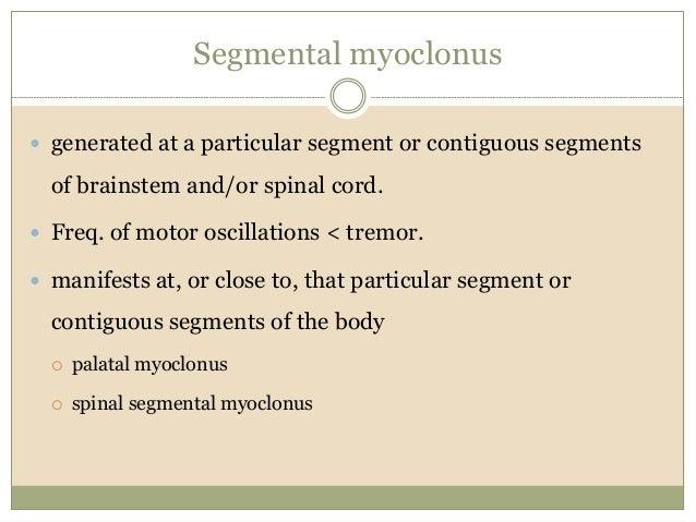 Propriospinal myoclonus emg study