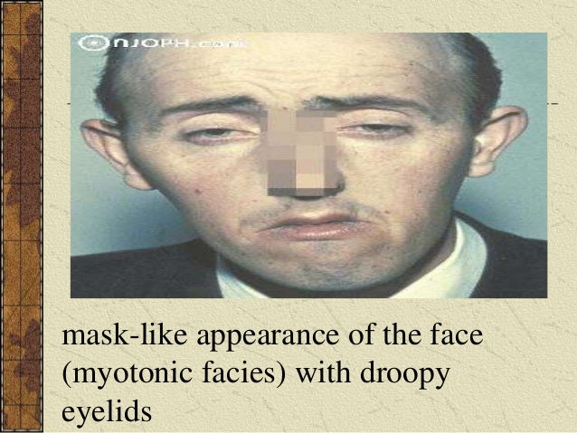 myotonic dystrophy Myotonic dystrophy is a highly degenerative muscular condition that affects 1 in every 8,000 people around the world read and know what is myotonic dystrophy.