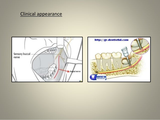 complications of exodontia Indian j dent res 2011 sep-oct22(5):633-8 doi: 104103/0970-929093447  complications of exodontia: a retrospective study venkateshwar gp(1), padhye .