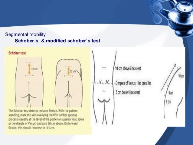 modified schober test pdf