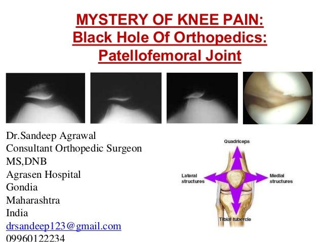 MYSTERY OF KNEE PAIN: Black Hole Of Orthopedics: Patellofemoral Joint Dr.Sandeep Agrawal Consultant Orthopedic Surgeon MS,...