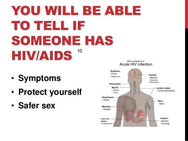 Having sex with someone with hiv photo 93