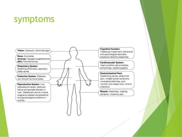 Myotonic dystrophy