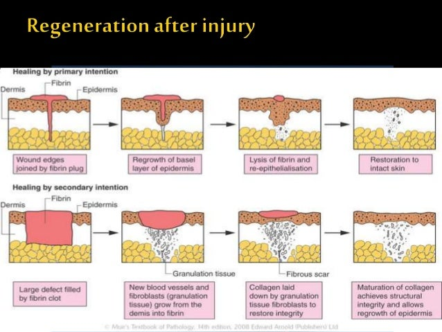 process of tissue repair Healing (literally meaning to make whole) is the process of the restoration of health from an unbalanced healing involves the repair of living tissue.