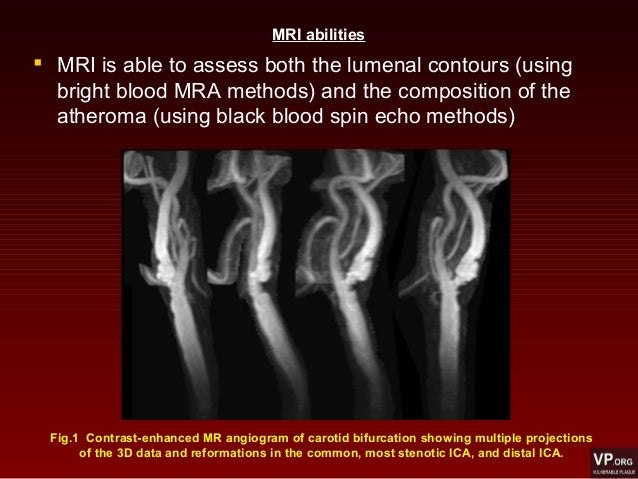  MRI is able to assess both the lumenal contours (using bright blood MRA methods) and the composition of the atheroma (us...