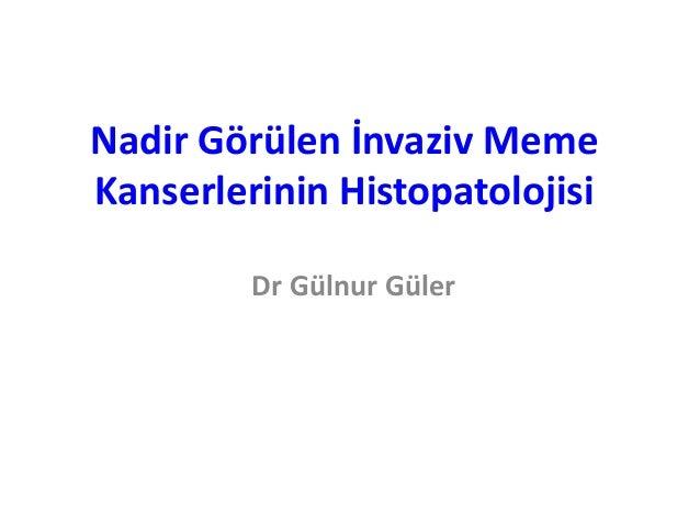 Nadir Görülen İnvaziv MemeKanserlerinin Histopatolojisi         Dr Gülnur Güler