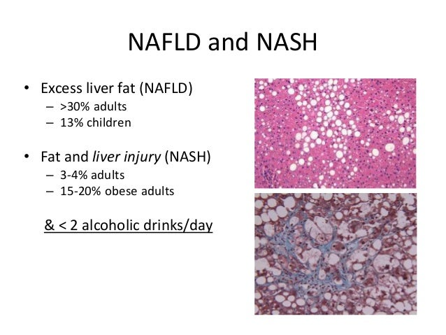 obesity and non alcoholic fatty liver disease Non-alcoholic fatty liver disease (nafld) is one of the most frequent liver diseases worldwide the underlying causes involve obesity and decreased physical activity leading to accompanying.