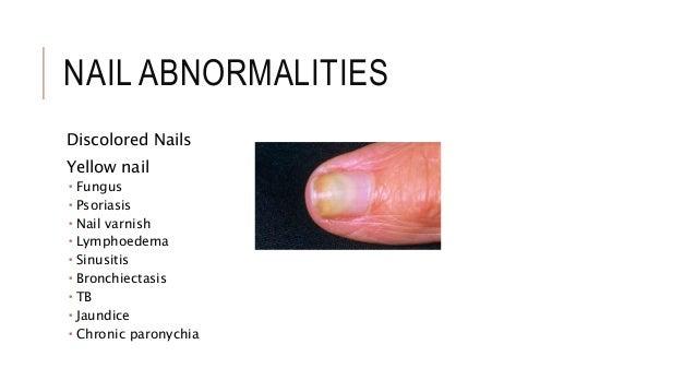 Nail Abnormalities  Nail Abnormalit...
