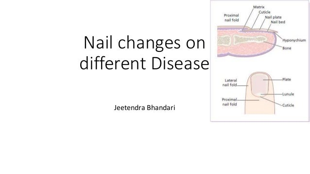Nail Changes On Different Dermatologic Disease