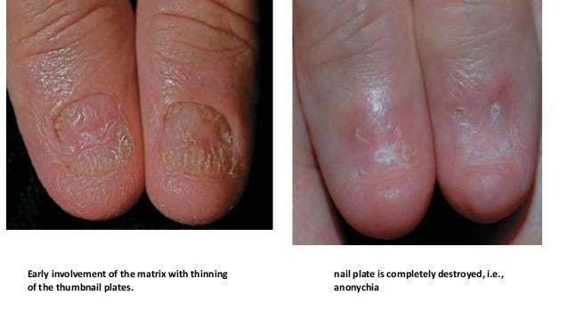 Eczema nails  Jill scott insomnia