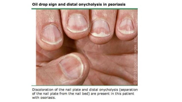 ONYCHOMYCOSIS 6 Introduction O Fungal Infection Of Nails
