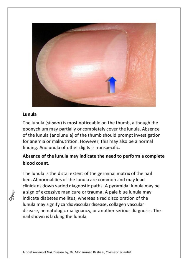 A Brief Review Of Nail Diseases By Dr Mohammad Baghaei
