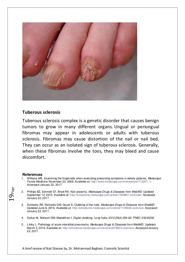 a brief review of nail diseases by, Dr. Mohammad Baghaei