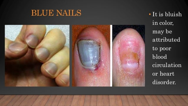 Nail Disorders Treatment In Pune Shubham Skin Clinic