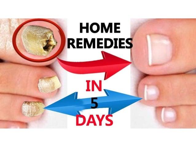 4 Nail fungus natural remedy