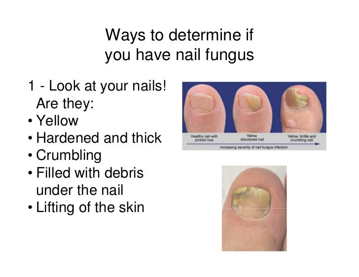 Healthcare Guide to Laser Treatment for Toenail Fungus