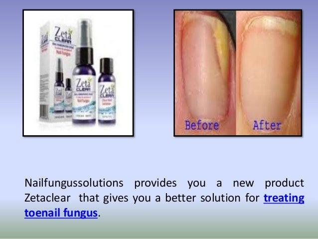 Fungal Nail Treatment Reviews