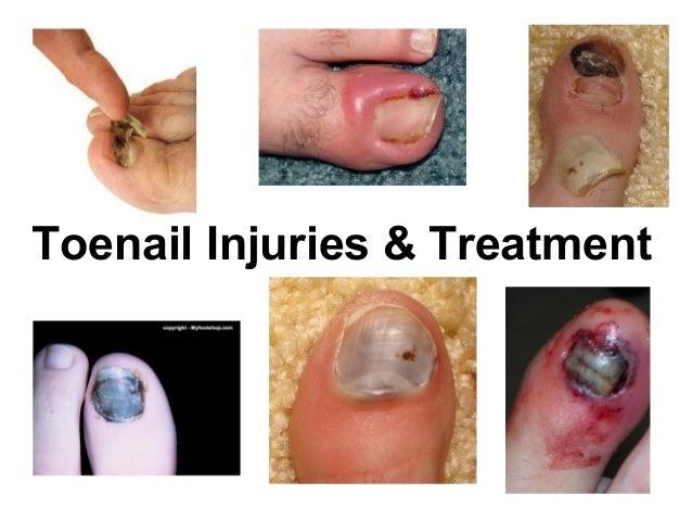 Toenail Injuries & Treatment