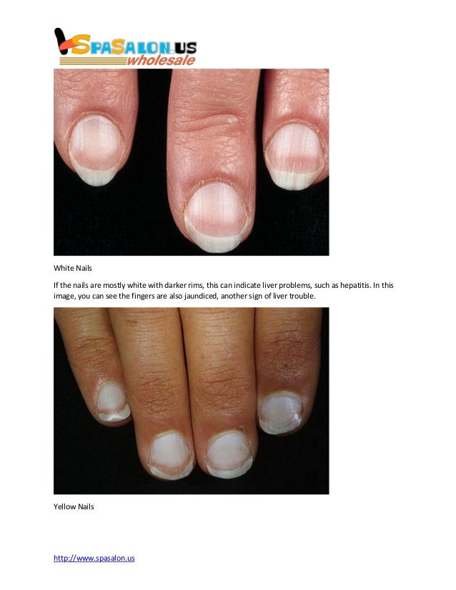 Nails and health