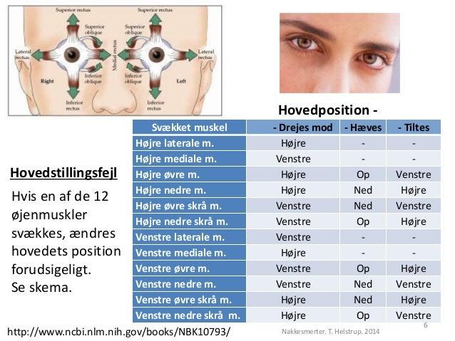 Hovedposition -  Svækket muskel - Drejes mod - Hæves - Tiltes  Højre laterale m. Højre - -  Højre mediale m. Venstre - -  ...