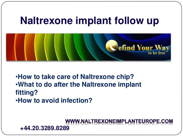 Naltrexone implant follow up •How to take care of Naltrexone chip? •What to do after the Naltrexone implant fitting? •How ...