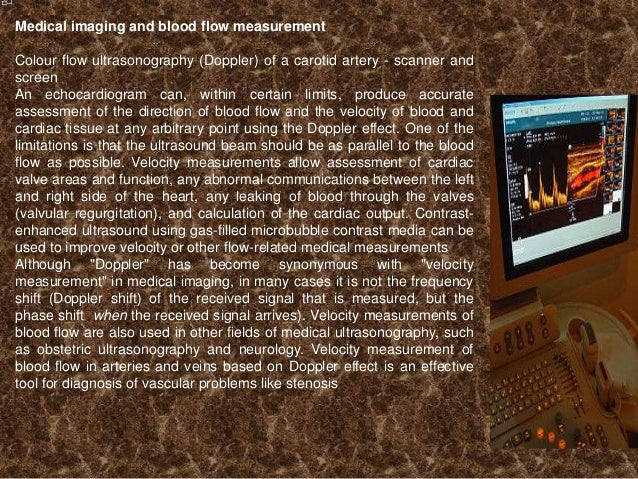 Medical imaging and blood flow measurement Colour flow ultrasonography (Doppler) of a carotid artery - scanner and screen ...