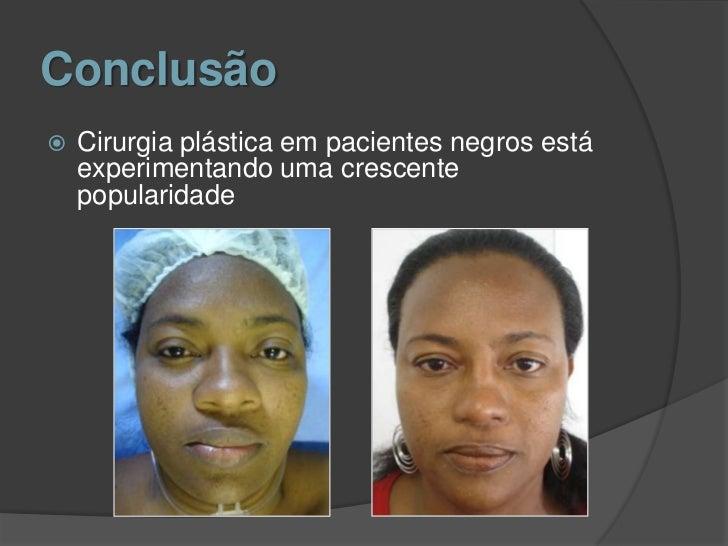 Cirurgia Plástica Brasilia DF Armando Cunha - Plastic ...