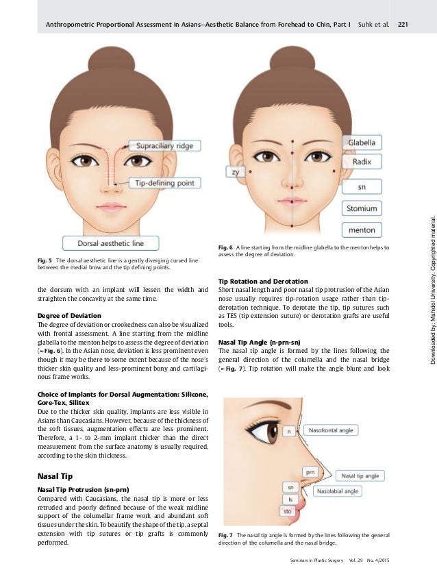 Nasal analysis and anatomy anthropometric proportional assessment in…