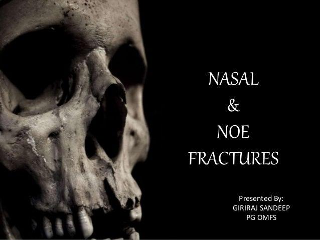 NASAL & NOE FRACTURES Presented By: GIRIRAJ SANDEEP PG OMFS