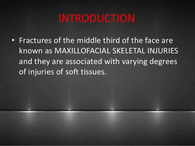 Nasal and noe fractures Slide 3