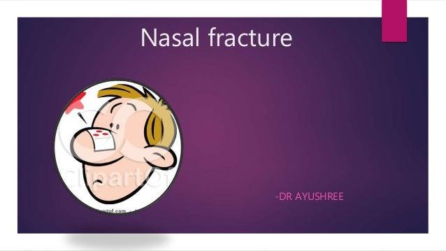 Nasal fracture -DR AYUSHREE