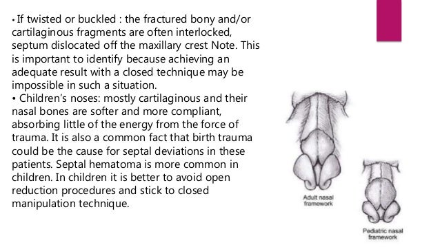On the basis of pattern of fracture :