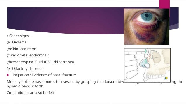 Epistaxis  Can range from minor mucosal oozing to life threatening large blood vessls bleed. use of local vasoconstrictor...