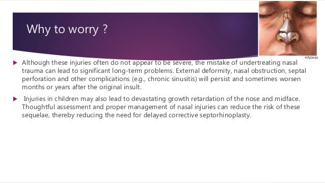 Why to worry ?  Although these injuries often do not appear to be severe, the mistake of undertreating nasal trauma can l...
