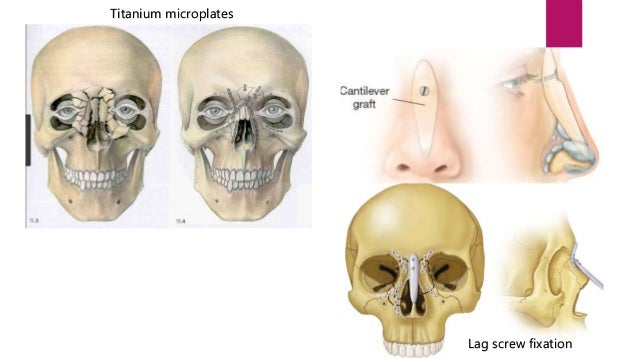 Nasal fracture ent ppt