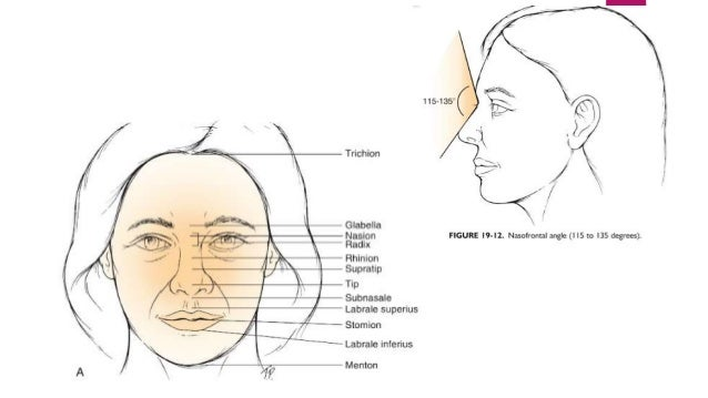 PATHOGENESIS Direction of the force:  Frontal direction : in fracture of the lower margin of the nasal bones  High front...