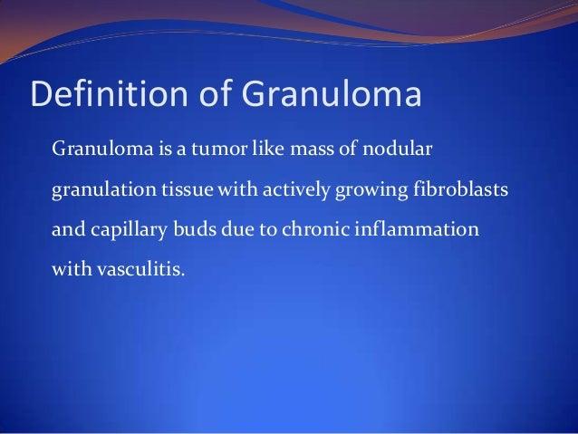 Classification of Granulomas Bacterial  Fungal   Rhinoscleroma   Rhinosporidiosis  Wegener's   Syphilis  Tuberculosis...