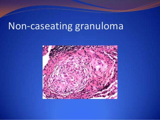 Definition Autoimmune condition characterized by necrotizing granulomas within nasal  cavity & lower respiratory tract wit...