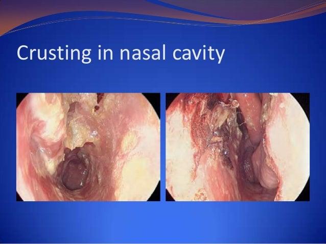 CXR: nodular lesion with cavity